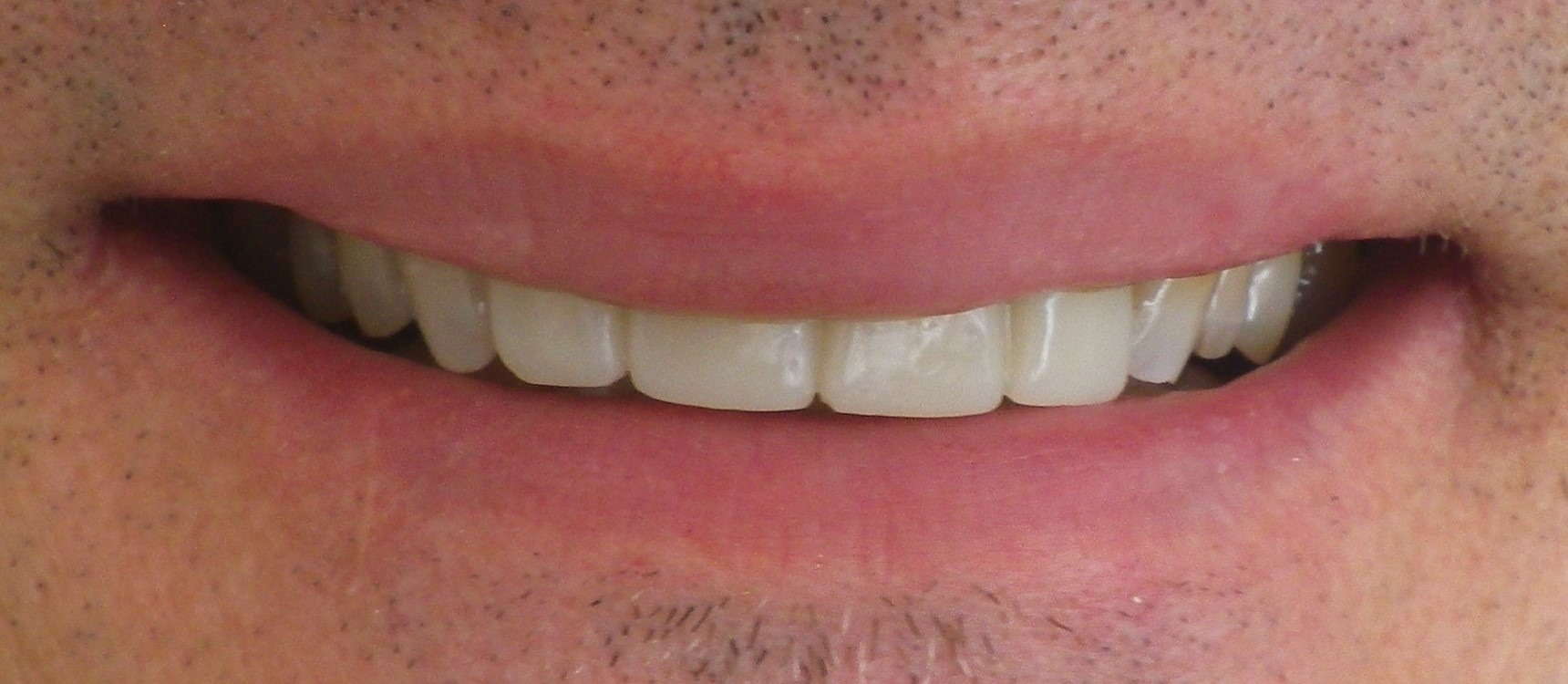 Anterior Crowns-After