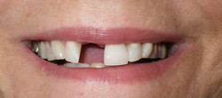 Missing front tooth-Before