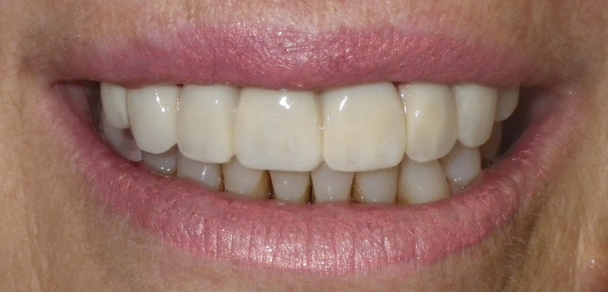 Complete Smile Makeover-After