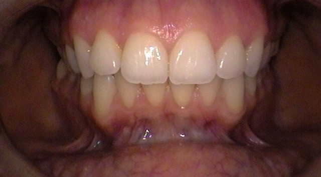 In-office Whitening 1-Before