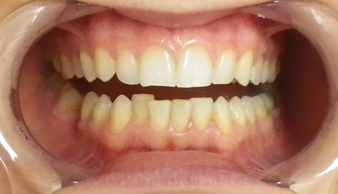 In-office Whitening 3-Before