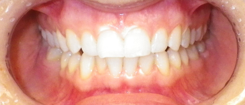In-office Whitening 3-After