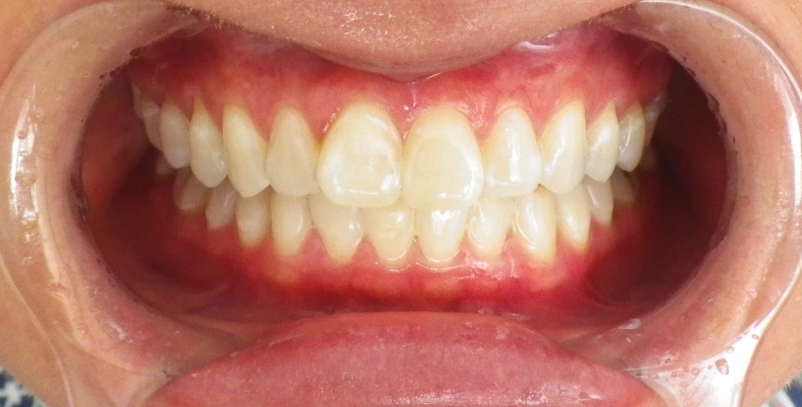 In-office Whitening 4-After