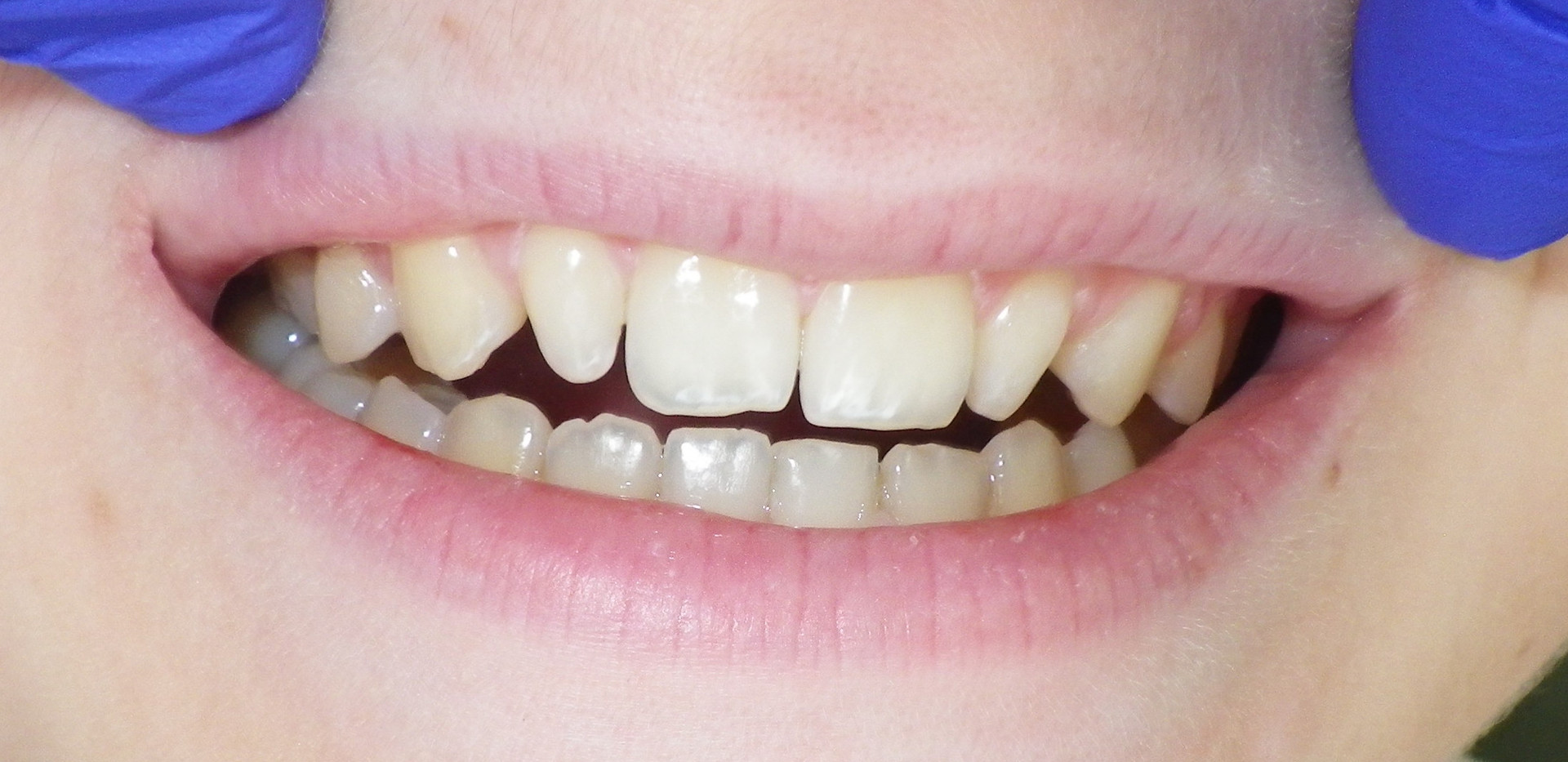 Smaller Front teeth-Before