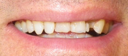 Anterior Crowns-Before