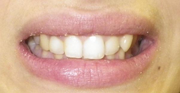 Full Smile Makeover-Before