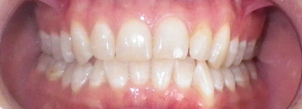 In-office Whitening 2-Before