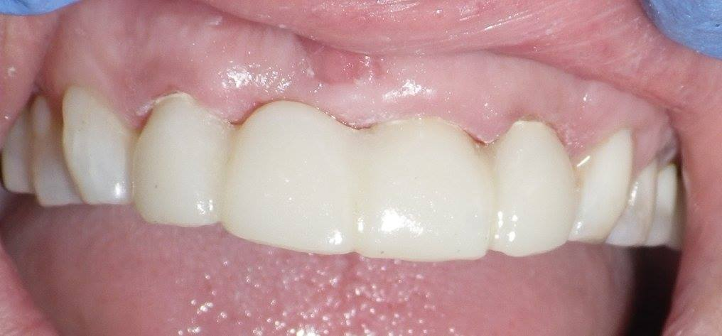 Missing front tooth-temporary bridge