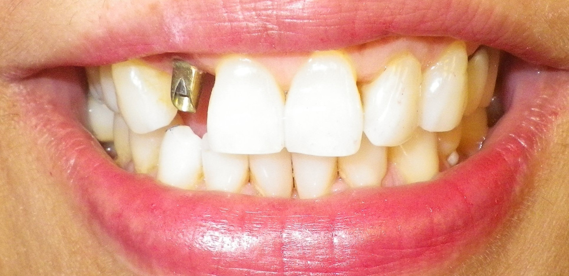Implant-Before
