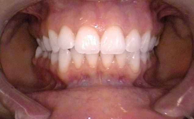 In-office Whitening 1-After