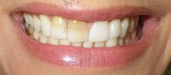 Discolored Teeth-Before