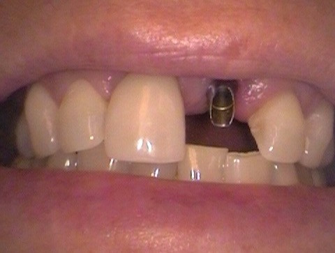 Implant With Abutment-Before