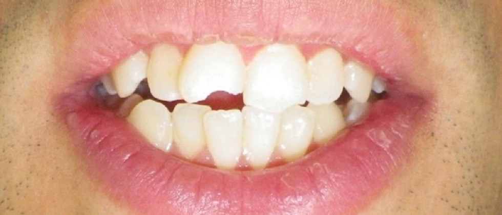 Chipped Front Teeth-Before
