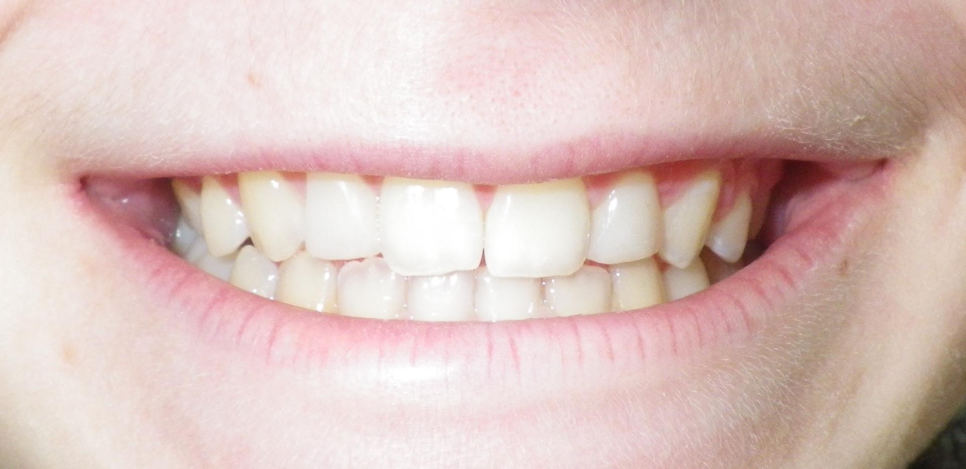 Smeller Front Teeth-After