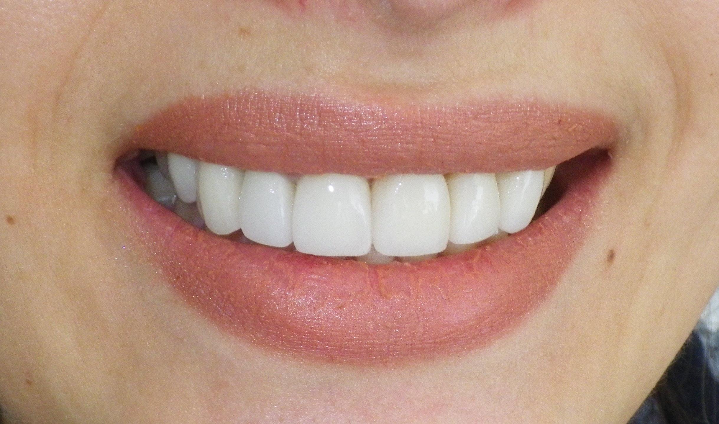 Full Smile Makeover-After
