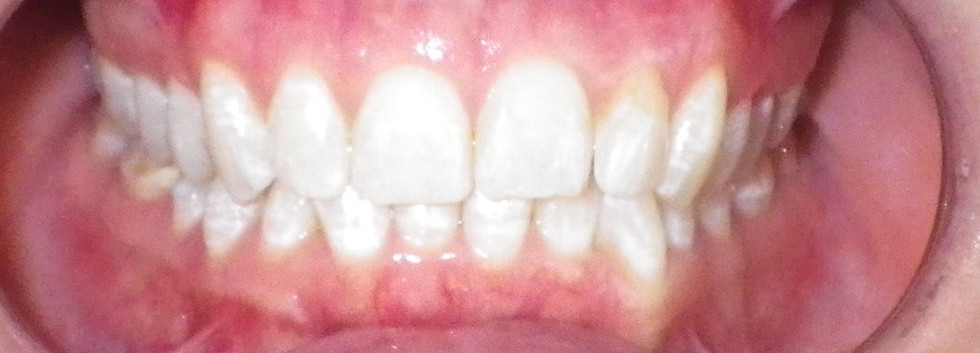 In-office Whitening 2-After
