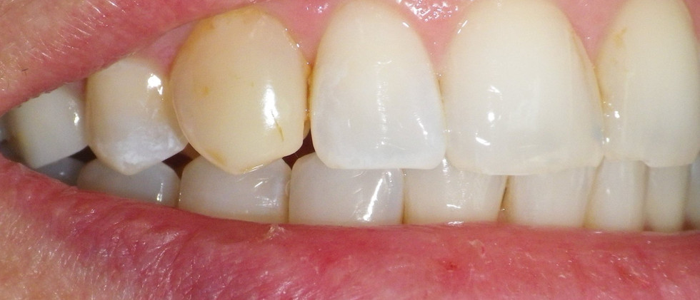 Discolored Bonding-Before