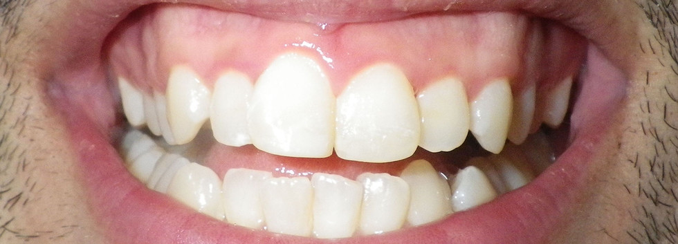 Chipped Front Teeth-After