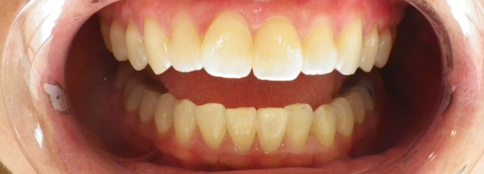 In-office Whitening 4-Before