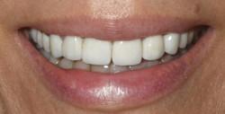 Complete Smile Makeover 2-After