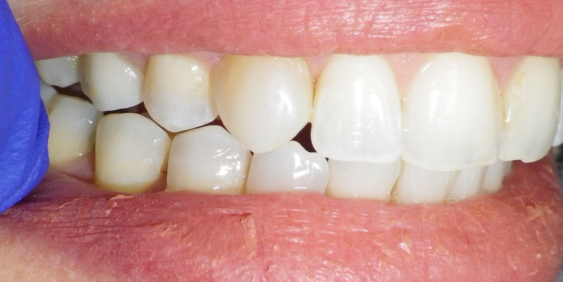 Discolored Bonding-After