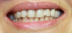 Complete smile makeover 2-Before