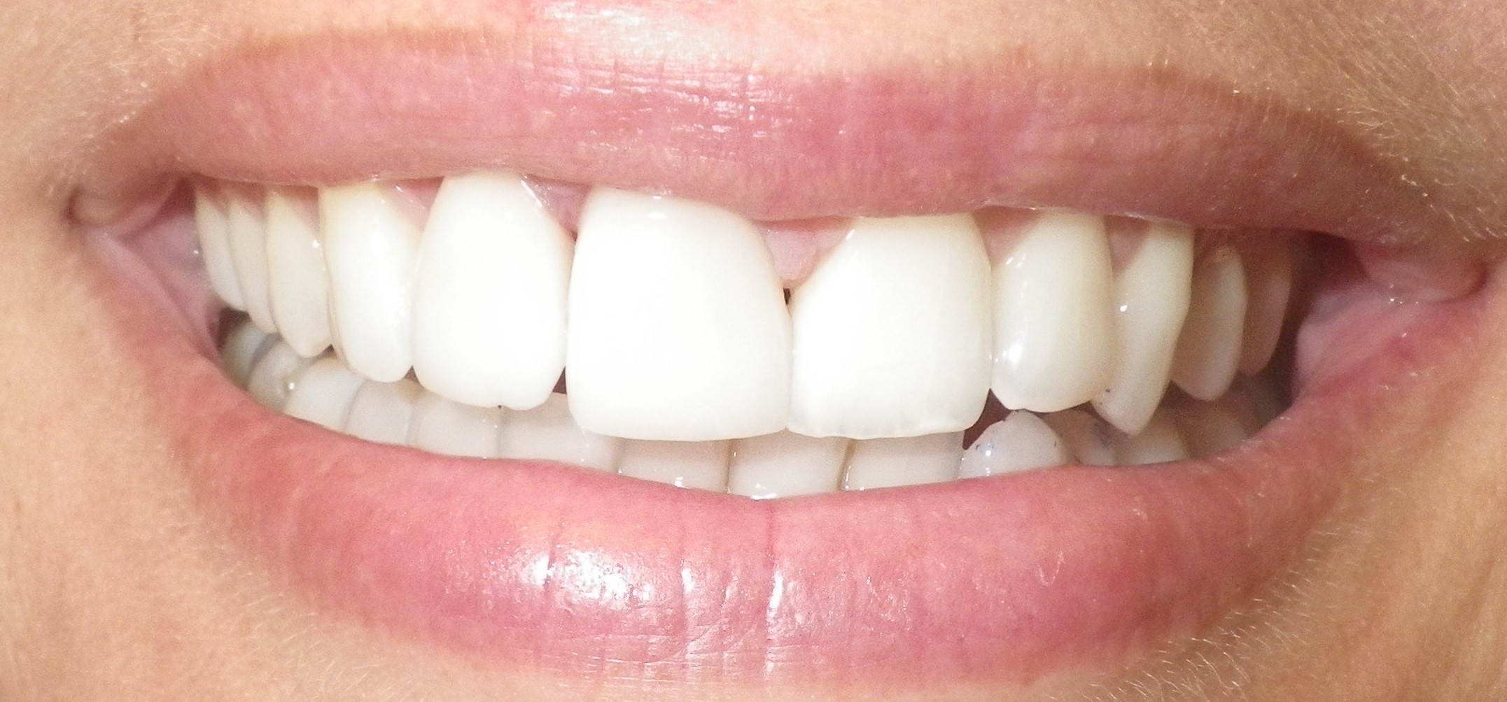 Discolored Teeth-After
