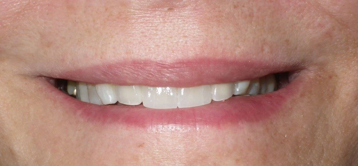 Missing front tooth-Bridge After