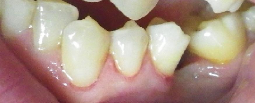 Cavities-After