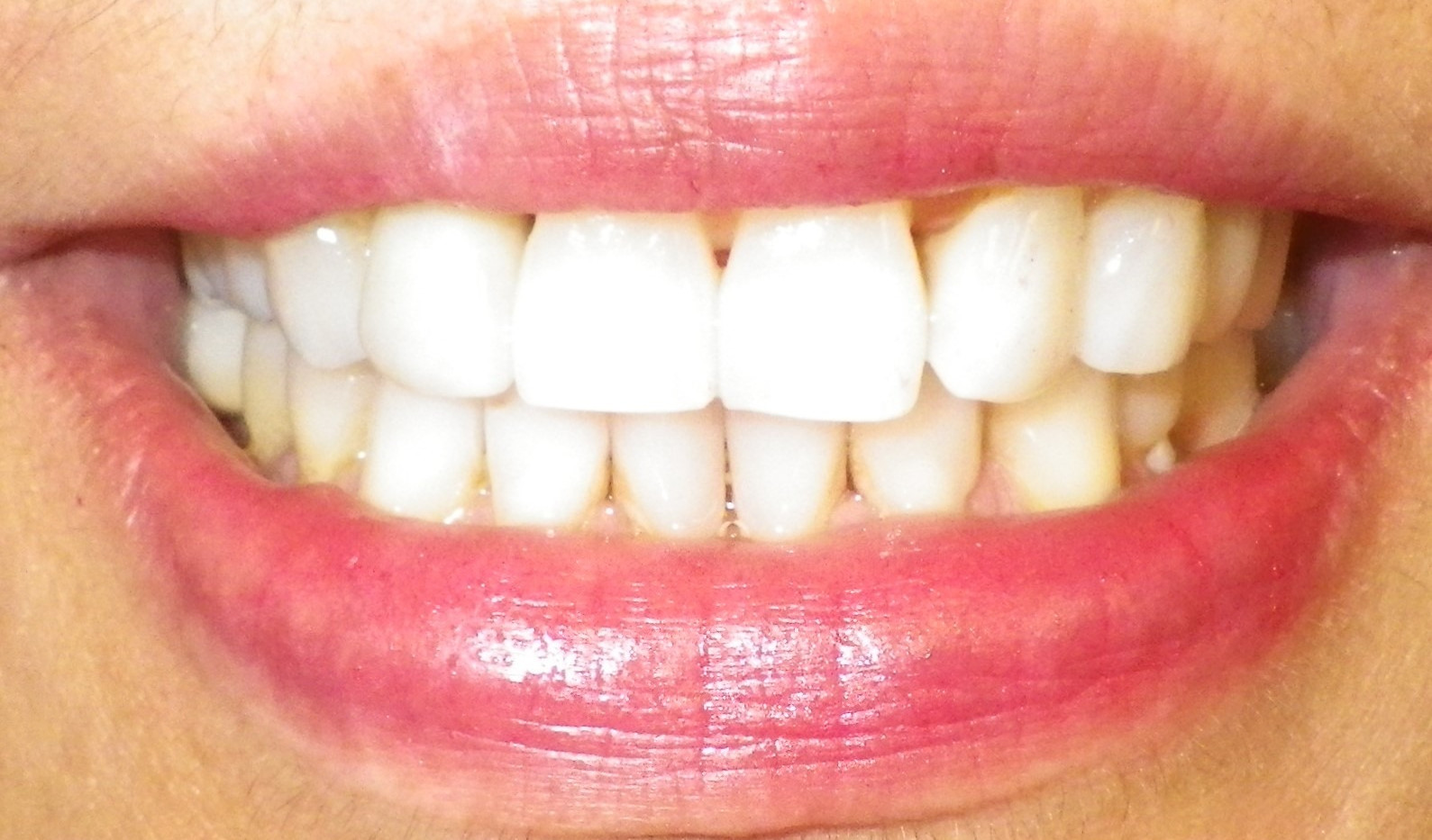 Implant With Crown-After