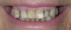 Complete Smile Makeover-Before