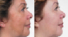 Melasma-using-Obagi-before_l.jpg