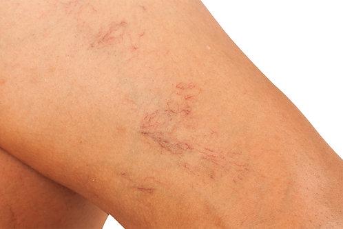 Laser vein Removal / Veinator