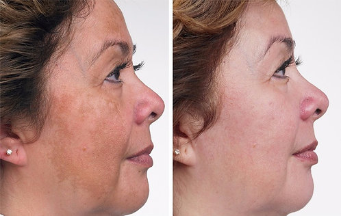 Laser Pigment Therapy