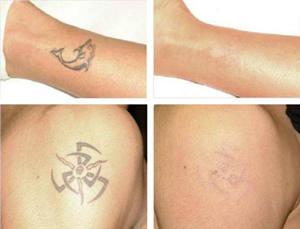 tattoo_removal.jpg