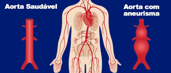 aorta-sbacv.jpg