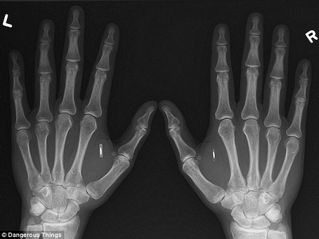 Chip Implants in Human: RFID Future!