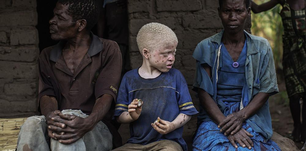 Africanos Albinos perseguidos