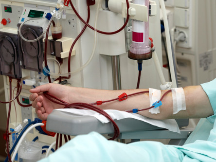 New Bill Offers Help for Georgia's Dialysis Patients
