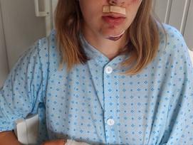 Ingunn K. Myhre falt og skadet seg på Jenteløftet