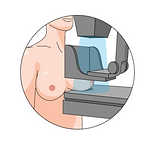 mammography service | HSIG