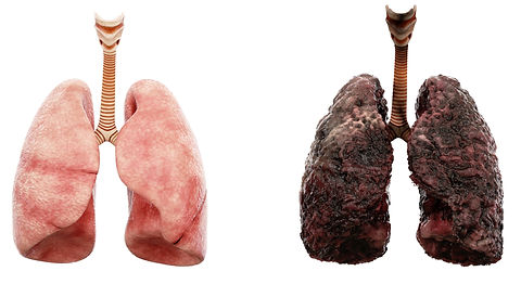 canercer-lungs_edited.jpg