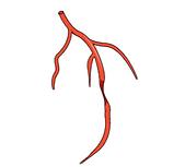 ct coronary angiogram service | HSIG