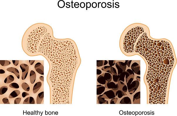 osteoporosis_edited.jpg
