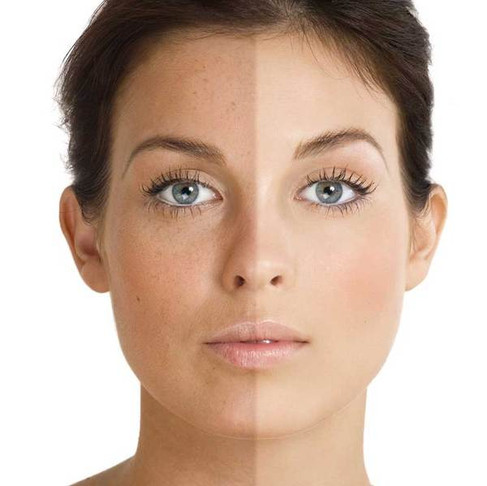 Excessive sun exposure and how it damages our skin