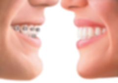 Invisalign Braces Orthodontist Mildura