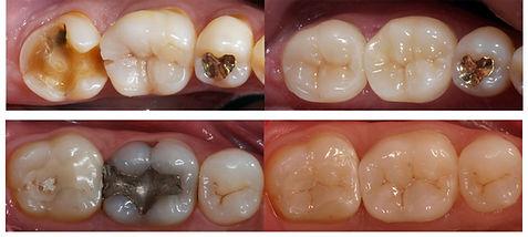 Dental Crowns Mildura