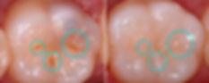 Preventative Fissure Sealants Mildura Dentist