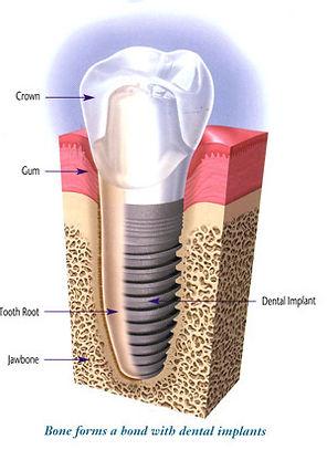 Implants Mildura Dentist