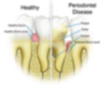Dental Hygienist Mildura